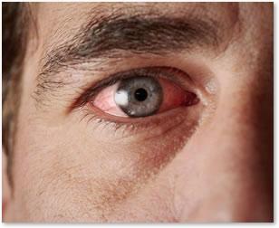 Eye Discomfort
